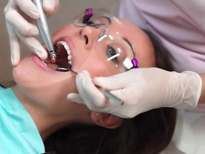 Limpeza dental e remoção de tártaro