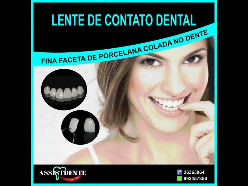 8424476a4db69 Você sabe o que é lente de contato dental  - Assistdente Ortodontia ...